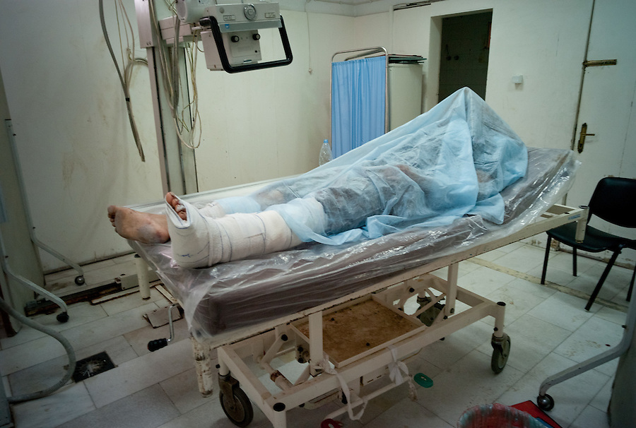 Rebel casualty at Al-Zawiya Hospital, Zawiya, Libya