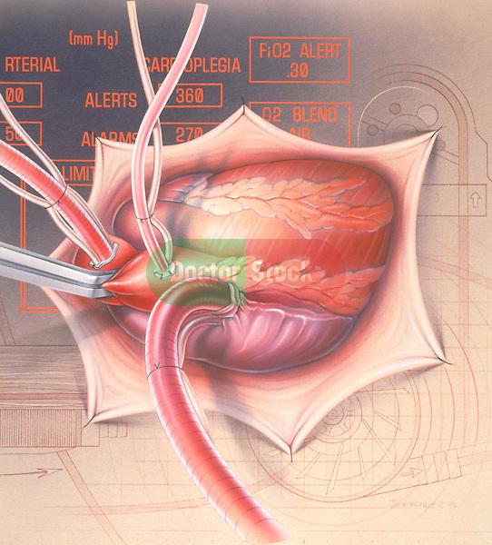 cardiopulmonary bypass surgery