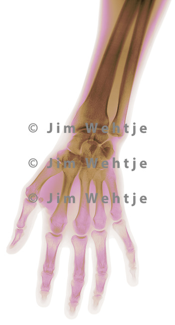 X-ray image of a hand (color on white) by Jim Wehtje, specialist in x-ray art and design images.