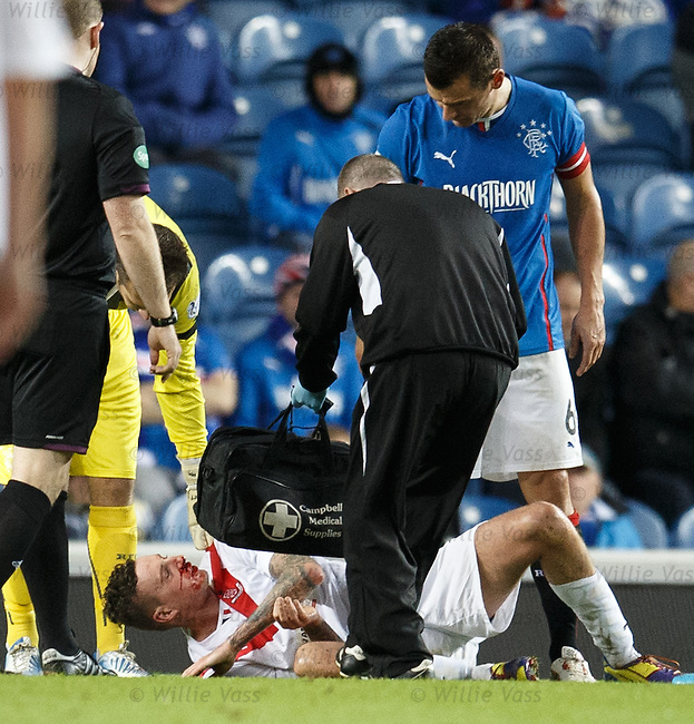 Lewis Coult covered in blood after a collision with Lee McCulloch
