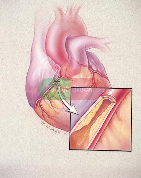 blockage of coronary artery