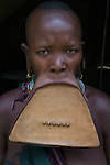 20 year old Surma woman has been stretching her lip for 3 years since the initial piercing of her lip and removal of her lower front teeth, Omo River Valley, Ethiopia.