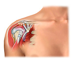 Arthrosis of the shoulder, bursitis and impingement of soft tissues in a female shoulder