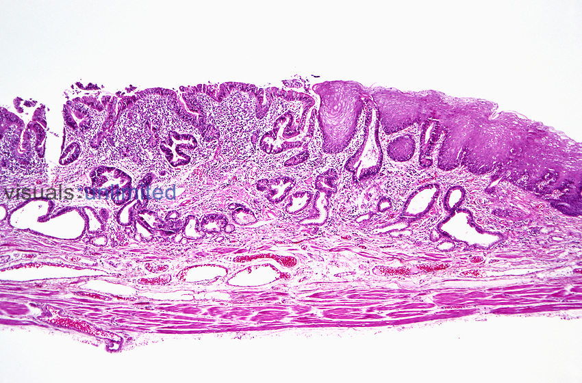 Human gastroesophageal junction section showing stratified squamous mucosa on the right and the esophagus glandular mucosa on the left, with the stomach smooth muscle wall below. H&E stain,  LM X10