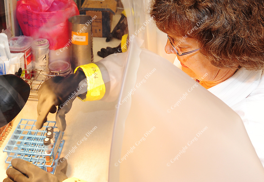 JoAnn Cairy works with infectious agents through a protective shield in the UW Hospital laboratory. JoAnn is a senior medical technologist and helped track down the infection causing Lemierre's syndrome.