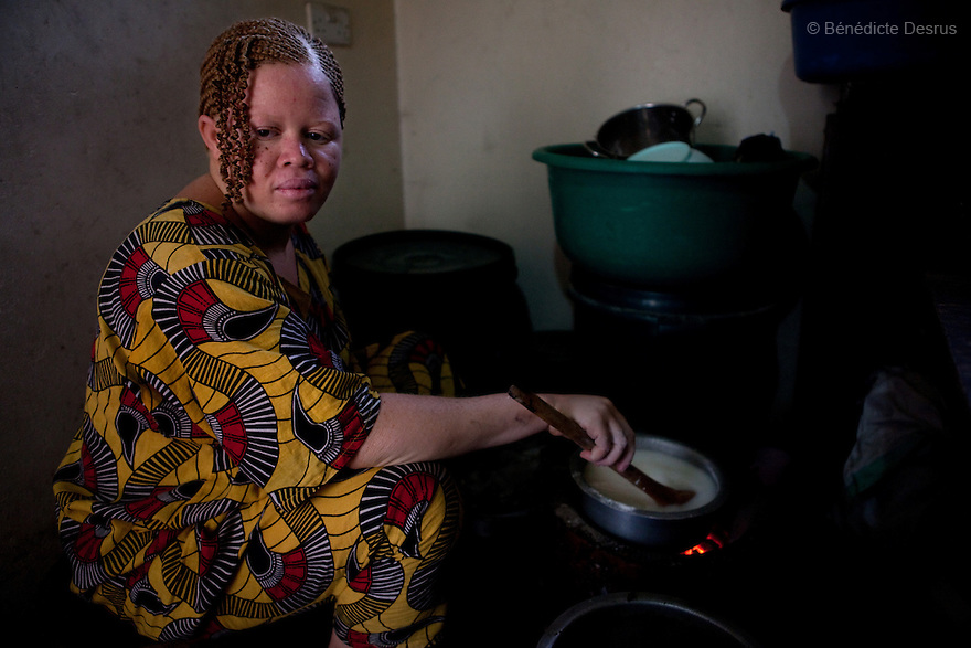 10 june 2010 - Dar Es Salaam, Tanzania - Samuel Mluges daughter: Lilina Adelina (25 yrs) while cooking at the family house. Samuel Herman Mluge (51yrs) an albino rights activist in Dar Es Salaam, Tanzania and his wife Teresa January (46 yrs) have five children, all with albinism. Albinism is a recessive gene but when two carriers of the gene have a child it has a one in four chance of getting albinism. Tanzania is believed to have Africa' s largest population of albinos, a genetic condition caused by a lack of melanin in the skin, eyes and hair and has an incidence seven times higher than elsewhere in the world. Over the last three years people with albinism have been threatened by an alarming increase in the criminal trade of Albino body parts. At least 53 albinos have been killed since 2007, some as young as six months old. Many more have been attacked with machetes and their limbs stolen while they are still alive. Witch doctors tell their clients that the body parts will bring them luck in love, life and business. The belief that albino body parts have magical powers has driven thousands of Africa's albinos into hiding, fearful of losing their lives and limbs to unscrupulous dealers who can make up to US$75,000 selling a complete dismembered set. The killings have now spread to neighbouring countries, like Kenya, Uganda and Burundi and an international market for albino body parts has been rumoured to reach as far as West Africa. Photo credit: Benedicte Desrus
