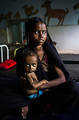 18 month old Prahlad Ramesh, an extremely malnourished boy is seen with his 21 year old mother, Rekha at the Nutrition Rehabilitation Centre (NRC) in Khaknar block of Burhanpur district in Madhya Pradesh, India. Prahlad was admitted to the NRC on Sept 13, 2012 and weighed 4.400Kg and his weight on Sept 18, 2012 was recorded at 4.730Kg. Photo: Sanjit Das/Panos for ACF