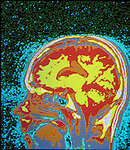 computer screen with image of MRI brain scan, diagnostic