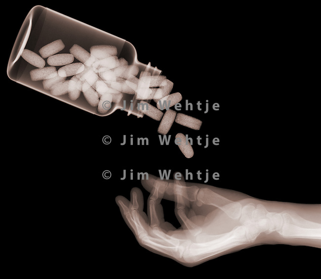 X-ray image of pills pouring into hand (brown on black) by Jim Wehtje, specialist in x-ray art and design images.