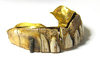 BNPS.co.uk (01202 558833)<br /> Pic: Hansons/BNPS<br /> <br /> Ancient Dentures...<br /> <br /> A brick layer who unearthed a 200-year-old set of gold dentures while out metal detecting has put them up for sale for £7,000.<br /> <br /> Peter Cross, 59, made the bizarre discovery while searching a field near his home in Derbyshire earlier this year.<br /> <br /> The false teeth are believed to date back to around 1800 and would have belonged to an incredibly wealthy individual.<br /> <br /> Only the upper dentures were discovered as the lower set would not have included any metal.