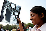 Shivani Misra (16) uses an old x-ray to safely  observe the longest solar eclipse this century. The eclipse drew big crowds to New Delhi's Nehru Planatarium to see the spectacular views of the moon passing the face of the sun. The eclipse was seen across India before focus shifted towards China and Japan. Many people stayed indoors for supersticious reasons whilst others celebrated with prayer and ceremony.