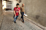 Nour, a 18-year-old Syrian man, walks with his relative in a rebel-controlled area of Aleppo, on August 13, 2015. Nour lost his leg following a bomb barrel attack by forces of Syria's President Bashar al-Assad near his house in Bustan al-Qasr district. A report from the Syrian Observatory for Human Rights (SOHR) claims that over 1,000 children have been killed in airstrikes during the nation's ongoing civil war, an additional 1.5 million people have been wounded for life in the airstrikes that have been carried out by Syria's government since the Syrian conflict. Photo by Ameer al-Halbi