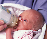 Bottle Feeding a Premature Baby