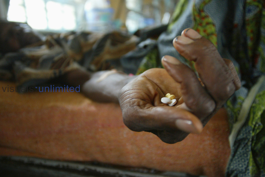 AIDS patient receiving medication in a clinic in Lagos, Nigeria.