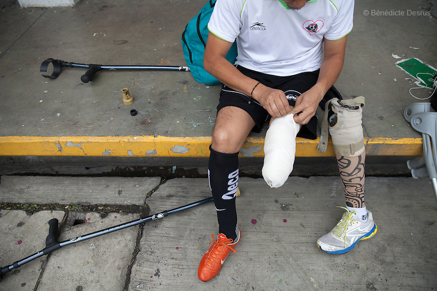 "A player from Guerreros Aztecas, removes his prosthetic leg before training in Mexico City, Mexico on June 26, 2014. Guerreros Aztecas (""Aztec Warriors"") is Mexico City's first amputee football team. Founded in July 2013 by five volunteers, they now have 23 players, seven of them have made the national team's shortlist to represent Mexico at this year's Amputee Soccer World Cup in Sinaloa this December. The team trains twice a week for weekend games with other teams. No prostheses are used, so field players missing a lower extremity can only play using crutches. Those missing an upper extremity play as goalkeepers. The teams play six per side with unlimited substitutions. Each half lasts 25 minutes. The causes of the amputations range from accidents to medical interventions – none of which have stopped the Guerreros Aztecas from continuing to play. The players' age, backgrounds and professions cover the full sweep of Mexican society, and they are united by the will to keep their heads held high in a country where discrimination against the disabled remains widespread. (Photo by Bénédicte Desrus)"