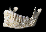 The compact bone on the outer surface of the human mandible or lower jaw has been removed to expose the dental roots, the underlying spongy or cancellous bone, and the mental canal that is used extensively in dentistry as an injection site to numb the mental nerve.