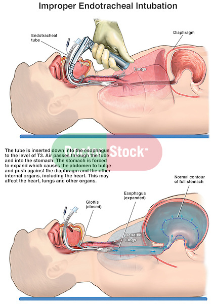 Improper Endotracheal Intubation. This full color medical illustration series shows the tube being correctly placed into the trachea to the level of the carina where the trachea divides in the bronchi. The second illustration show the tube being incorrectly placed into the esophagus resulting in air expansion the stomach and deflation of the lungs.