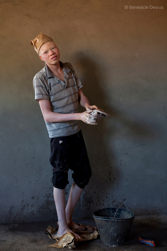 ALBINOS IN SUDAN<br /> <br /> Simon John, is a 18 year old sudanese albino from Yambio, Western Equatoria, Sudan. He has no parents because his father and mother died during the war so he had to take care of himself. He works in construction. He says he works in the hot sun all day long, but he has no choice because he has to pay for his food, his school fee and his rent. Simon skin is badly damaged from the sun. His delicate skin is prone to infections and diseases if not taken care of. Albinism is a genetic condition caused by a lack of melanin in the skin, eyes and hair. Photo credit: Benedicte Desrus