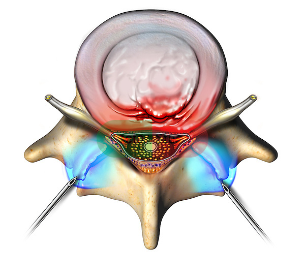 This stock image features a single superior view of a protruding L4-5 intervertebral disc and spinal vertebra. Needles are shown inserted bilaterally delivering a blue colored pain injection into each facet joint.