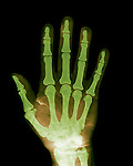 X-ray of the hand.