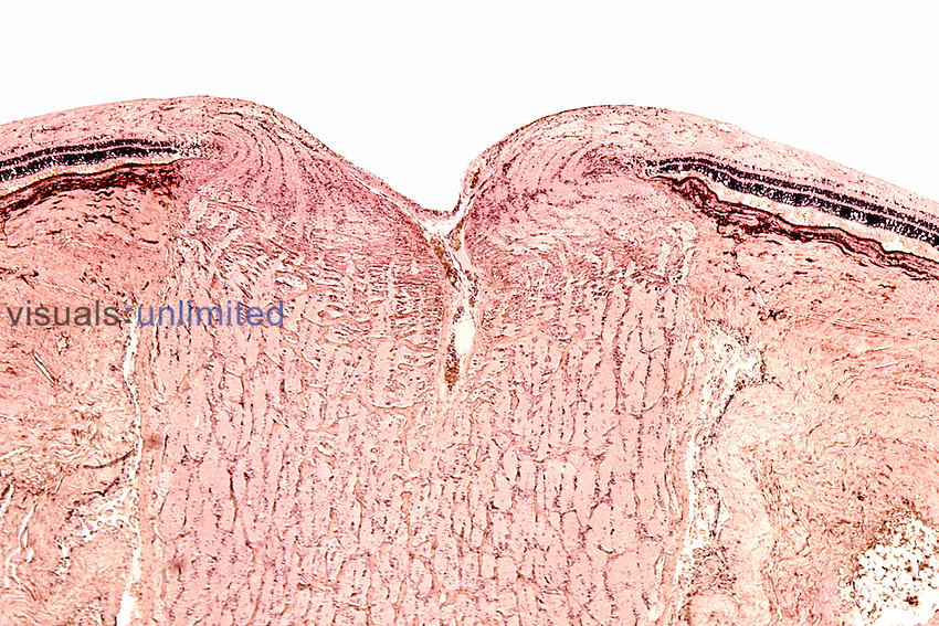 Median section of the retina showing the optic nerve region or blindspot and adjacent retina sections with rods and cones. LM X9