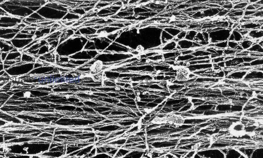 A rotary-shadowed platinum replica of a segment of a stress fiber extracted with Triton. The stress fiber is composed mainly of actin filaments.  SEM