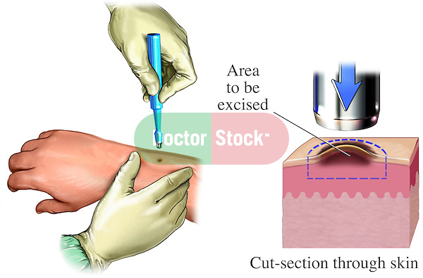 This medical exhibit illustrates a typical skin biopsy procedure.  The actual procedure is depicted as well as an inset showing the area that is excised and its relation to the different layers of the skin.