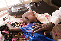 Kenya - Dadaab - 22nd July 2011. A child suffering from severe malnutrition is being cured at the GIZ (German NGO) hospital inside the refugee camp.