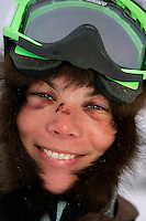 Thursday March 8, 2007   ----  Rookie Sigrid Ekran's face continues to bruise up during her 24 hour layover at Takotna on Thursday morning.