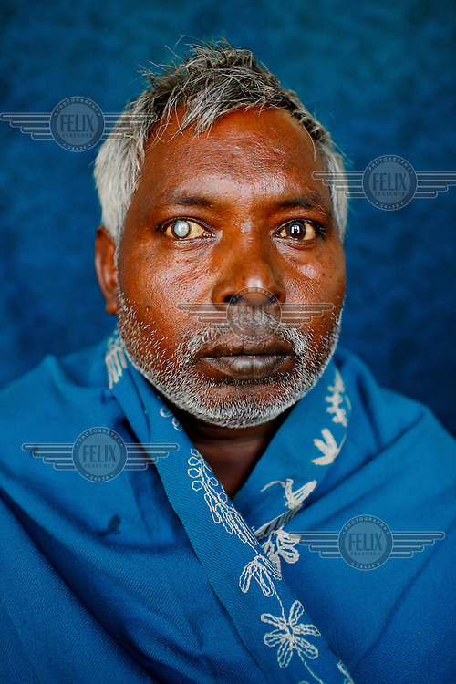 A portrait of Sahabir, a cataract patient from India at the GETA eye hospital.