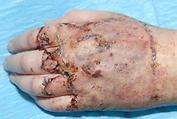 Pictured: Injuries suffered on the hands of Sophie Poole, one of the victims<br /> Re: McCauley Cox from Newport has been sentenced after being found guilty of using his car as a weapon to run over two people after a night out in Newport, Wales, UK