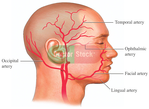 Arteries of the Head and Face. Depicts branches of the external carotid artery: temporal, ophthalmic, facial, lingual and occipital.