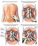 Surgery - L2-3 Disc Herniation with Laminectomy and Discectomy (Diskectomy).  The following surgical steps are shown: 1. An incision made in the lower back; 2. Opening the incision to show the L2-3 lumbar vertebrae; 3. Performing a laminectomy of the L3 vertebra exposing the herniated disc; and 4. Removing the herniated disc material.