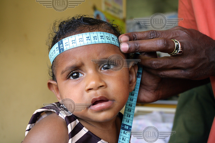 A child's growth is monitored at an MCH (Maternal Child Health) ward in Port Vila Central Hospital. UNICEF provide medical supplies, vaccines and basic drugs..