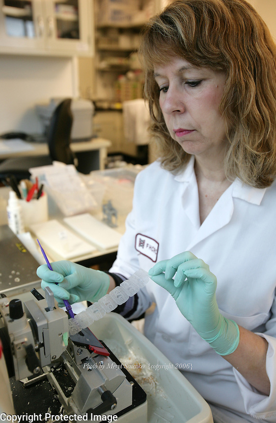 Sharon McLaughlin works at an automated microtone, fitted with a foot pedal instead of a manual wheel, to cut paraffin blocks with tissue samples from research investigators at Fred Hutchinson Research Center in Seattle, Washington on November 9, 2006.
