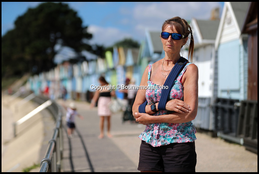 BNPS.co.uk (01202 558833)<br /> Pic:    BournemoutheEcho/BNPS<br /> <br /> A grandmother has told of how she was nearly killed after she cycled into a rope pranksters had tied across a seafront prom.<br /> <br /> Jan Binning, 63, was thrown backwards off her bike when she rode straight into the rope at neck height.<br /> <br /> She was left with a broken collar bone and a deep rope burn across her throat. Paramedics told her she was lucky not to have broken her neck or suffered a crushed windpipe.