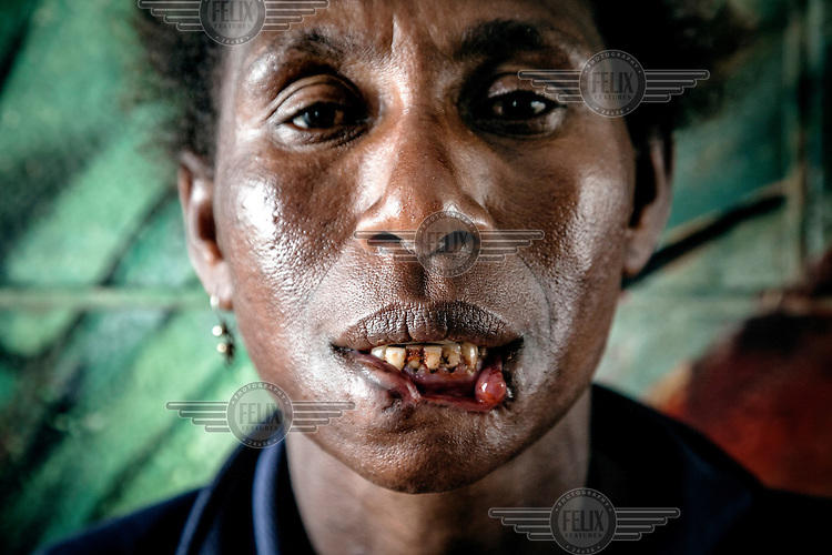Helen, 40, mother of seven children was attacked by a 'cannibal' in the central part of Port Moresby. The attacker bit off Helen's lower lip and tried to sink his teeth into her throat. Police arrested the man and found out that this was his third attempt to eat human flesh. After spending three days in the hospital, Helen went to the police station to initiate criminal proceedings against the cannibal, but discovered that he had been released due to lack of a complaint.