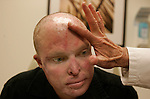 LOS ANGELES, CA NOVEMBER 3, 2008: U.S.Marine, Sgt. Blaine Scott, during a pre-surgeryconsultation before facial reconstruction from Dr. Timothy Miller, UCLA Professor and Chief of Plastic and reconstructive surgery, November 3, 2008. A program called 'Operation Mend' pairs top surgery teams at Reagan UCLA Medical Center with Marines injured in Iraq.