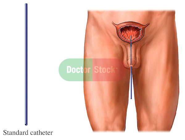 This full color stock medical illustration depicts the placement of a standard catheter into the bladder of a male figure.