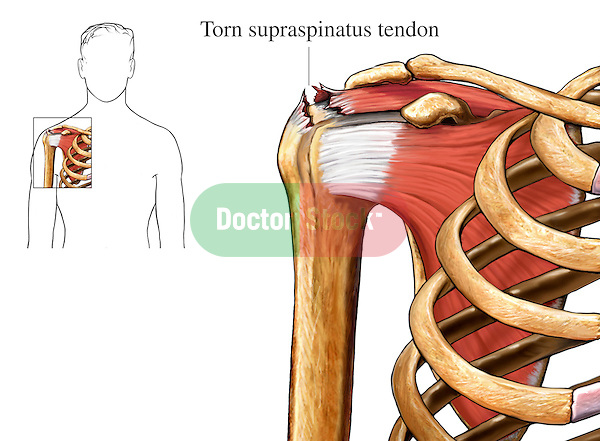 This medical exhibit illustrates a tear in the supraspinatus tendon of the shoulder.