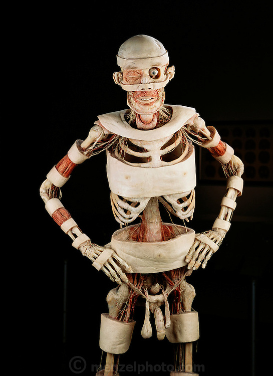 Gunther von Hagens' Bodyworlds exhibit. Body Worlds is a traveling exhibit of real, plastinated human bodies and body parts. Von Hagens invented plastination as a way to preserve body tissue and is the creator of the Body Worlds exhibits.