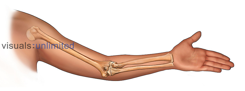 Biomedical illustration of a medial side view of a bent elbow with the bones of the arm (humerus, radius, ulna) ghosted beneath the skin.