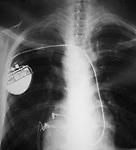 Radiografia com marca passo do Sr Manoel Oliveira - Tratamento de doença de Chagas no ambulatório de Chagas do hospitai Universitário Oswaldo Cruz/PROCAPE. Associação dos portadores  de doença de Chagas e insuficiência cardíaca