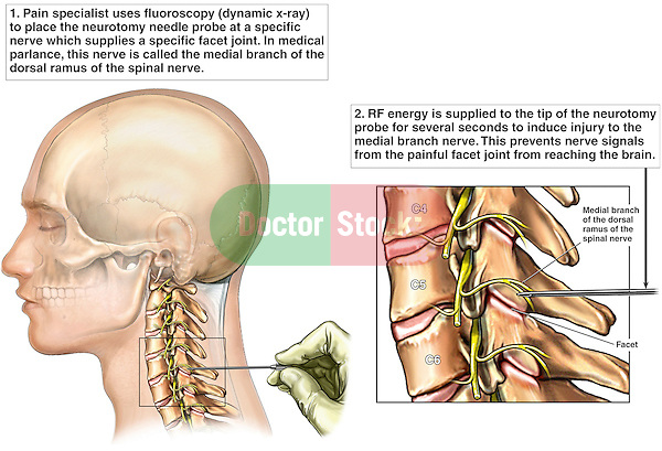 Cervical Facet Radio Frequency Neurotomy Doctor Stock