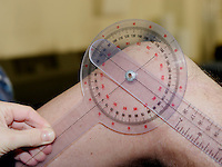 Measuring a patient's leg movement in an NHS hospital.