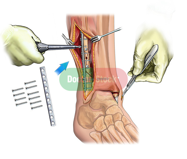 Fibular and medial maleollar fracture fixation; depicts the fixation of the fibular maleollar fracture including an inset of the fixation hardware  Also depicted in the incision over the medial malleolus