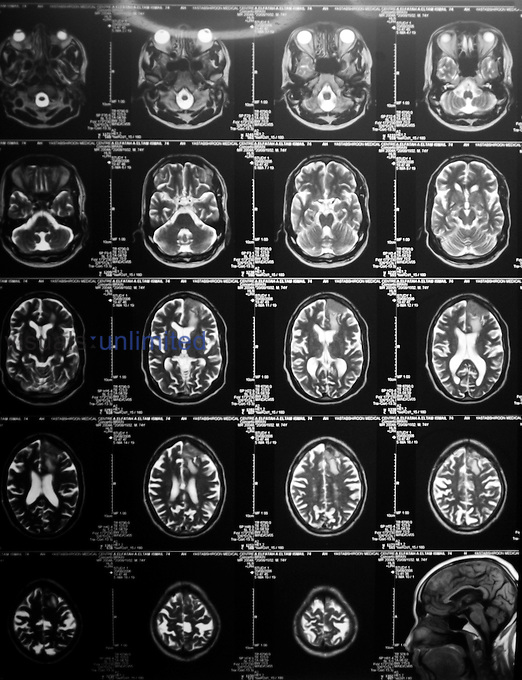 MRI scans of a patient's brain.. Royalty Free