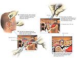 Right TMJ Derangement (Disarticulation) Repair Surgery.