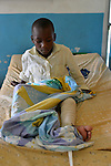 A boy healing from  a leg fracture in the surgery ward of Kibuye Hospital, Karongi District, Western Rwanda