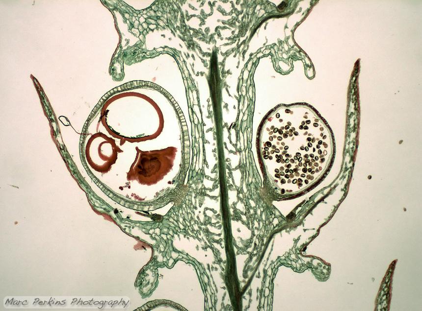 Cross section through the strobilus (club)  of a club moss, Selaginella sp.  Visible are both megaporangia producing megaspores and microsporangia producing microspores.